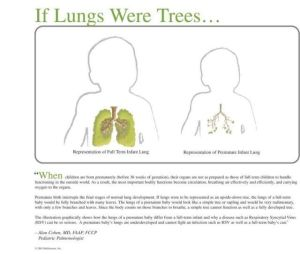 if lungs were trees